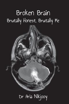 Broken Brain: Brutally Honest, Brutally Me